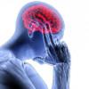 Projet de recherche sur les maux de tête: recherche de volontaires